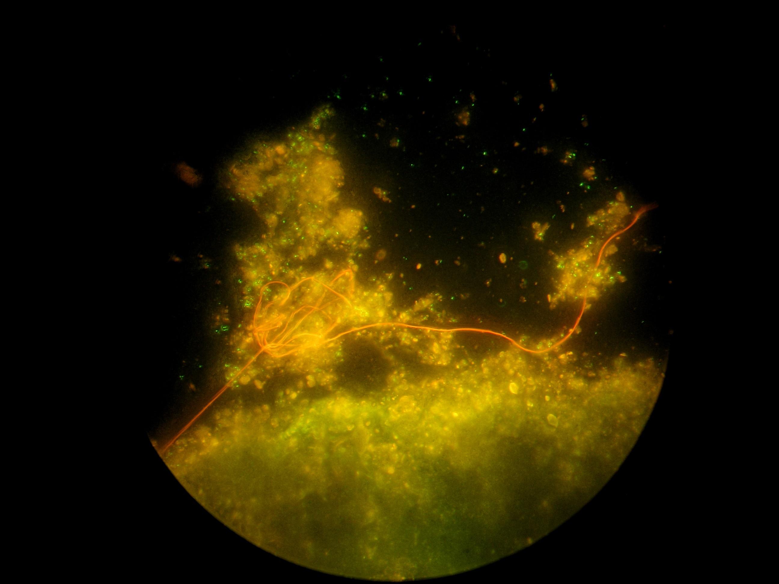 Die grün leuchtenden Bakterienzellen haben eine Größe von 1-2 Mikrometern (Mikrometer = Tausendstel Millimeter) und besiedeln vor allem die Sedimentflocken (Bildbearbeitung mit Picolay).